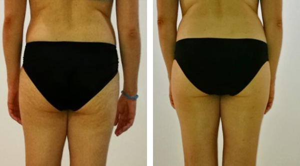 Reduce cellulite and accumulated fat from thigh