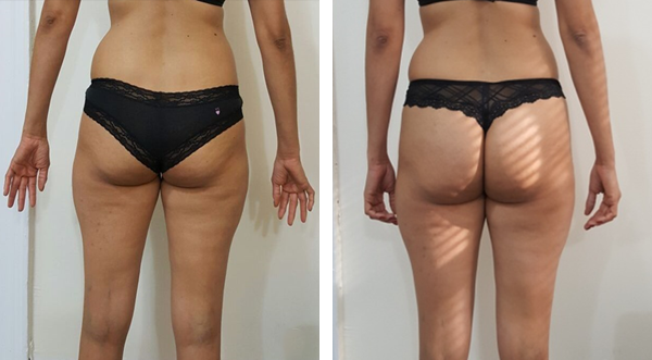 Reduce cellulite and accumulated fat from Buttock