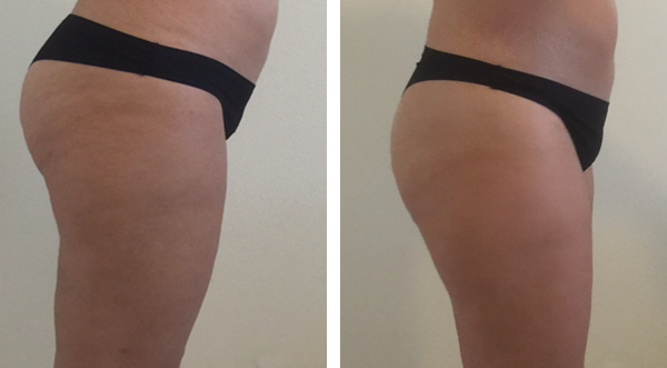 Reduce cellulite and accumulated fat from Abdomen