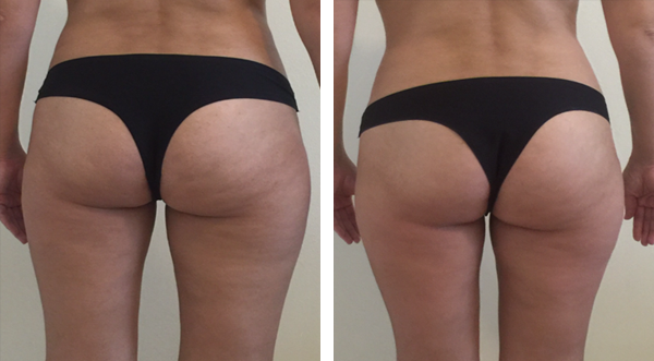 Reduce cellulite and accumulated fat from Buttocks and thighs