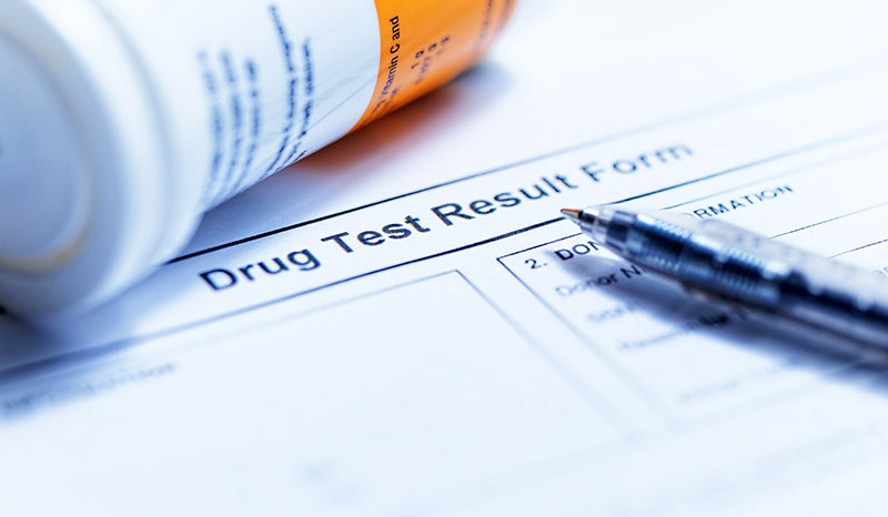 Does CBD show up on a drug test?