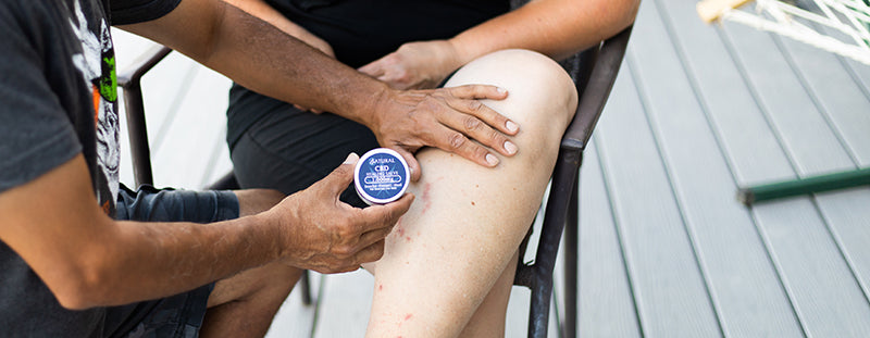Zatural CBD Salve being applied to women's leg. What can CBD be used for?