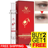 Anti-Puffiness Black Dark Circle Remover Anti-Aging Ageless Eye Cream