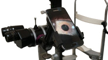 Load image into Gallery viewer, oDocs Australia Slit lamp adaptor