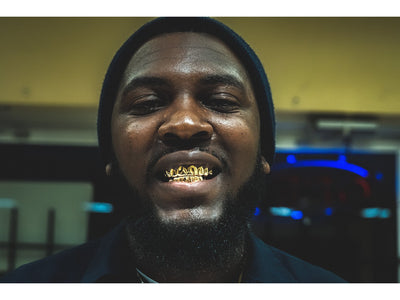 Custom Solid Gold Grillz [SG 001]
