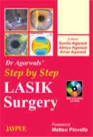 Step By Step Lasik Surgery