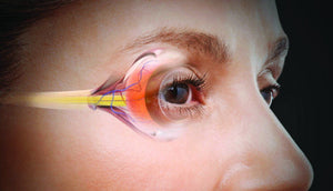 Top Causes of Eye Problems