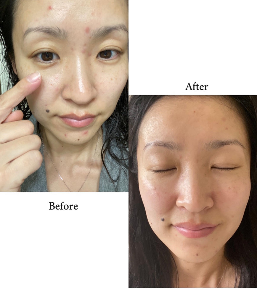 How I HEALED my damaged skin barrier with K-Beauty!