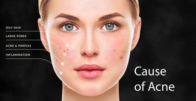 Cause of acne