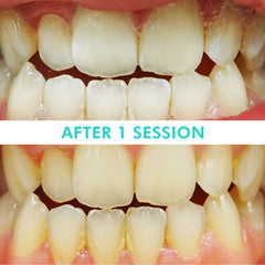 Mint Smilebar, Power Whitening Kit, LED Teeth Whitening Before and after
