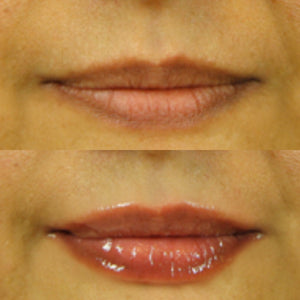 Stem Cell 3D Lip Enhancer