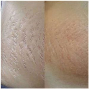 ECM Skin Re-Volumizer | Dermaroller Serum: Scarring, Stretchmarks, Anti-Aging