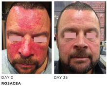 Load image into Gallery viewer, Rescue Epidermal Repair Serum | Rosacea, Large Pores