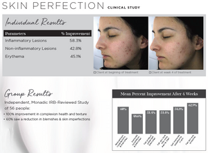 *PRE-SALE* Skin Perfection Elixir | Acne, Eczema, Psoriasis, Inflammation