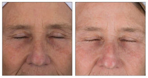 Stem Cell 3D Eye Lift | Aging Skin, Free Radical Damage, Fine Lines & Wrinkles