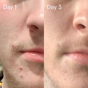 Sulfur Spot Treatment | Acne, Reduce Inflammation