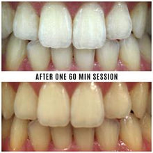 Load image into Gallery viewer, Mint Smilebar Power Whitening Kit - Instant LED Teeth Whitening Kit