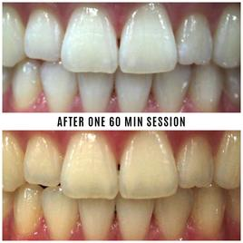 Mint Smilebar Power Whitening Kit - Instant LED Teeth Whitening Kit