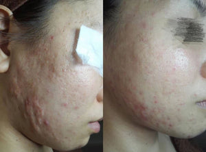 ACNE | Dermaroller Serum: Acne, Oily, Combination Skin