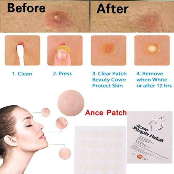 24PCS Acne Remover Treatment Cream Blackhead Remover Mask Acne Remover Tool Black Pimple Scar Skin Tag Removal Acne Patch