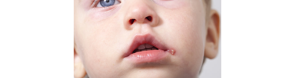 Child with Cold Sore