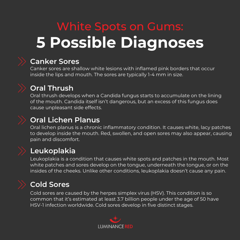 white spots on gums