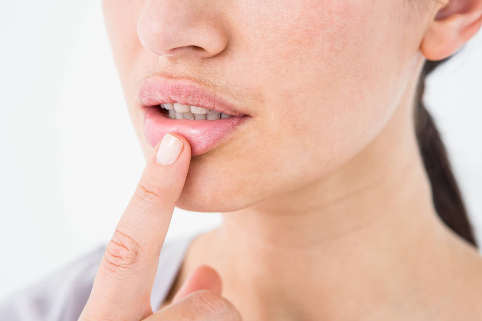 reduce cold sore swelling