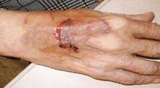 A very painful skin tear on the back of a hand