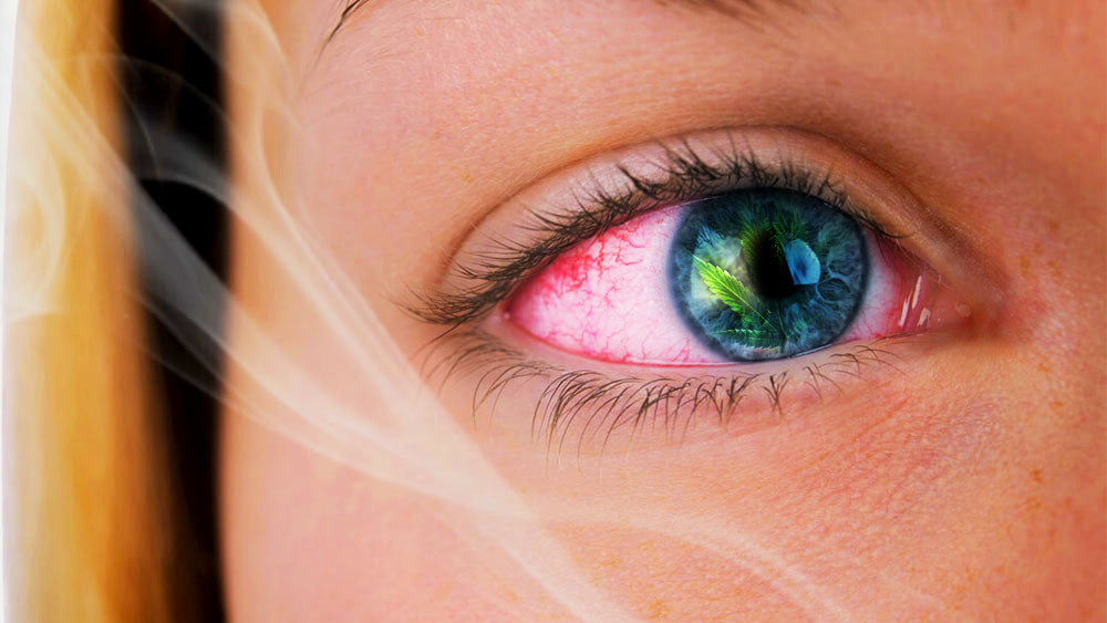 Does CBD make your eyes red - Get The Facts