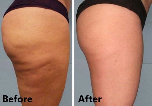 Anti Cellulite Vacuum Cup Therapy