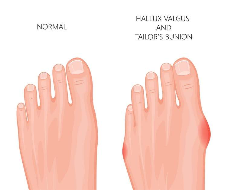 Bunion Corrector Gel Pad (1 Pair)