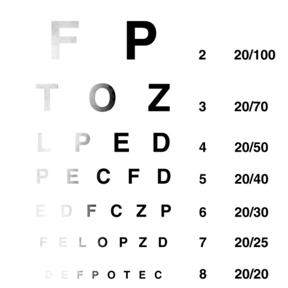 The Snellen Chart - all fuzzy from a brain tumor
