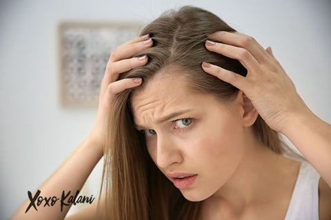Hair Loss issues? | Xoxokalani