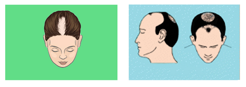 Intermediate Stages Of Hair Loss