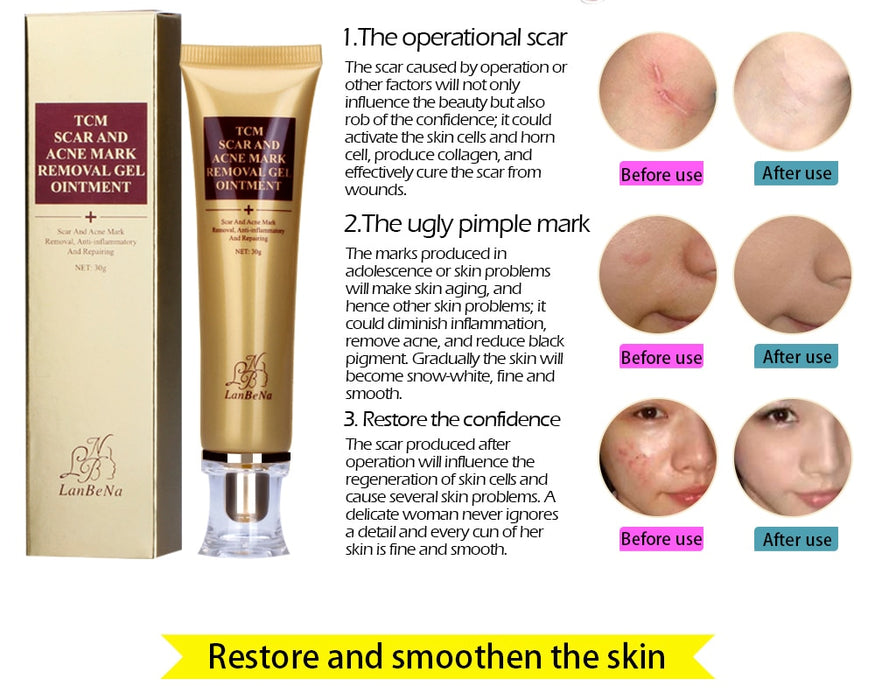 Acne Scar Remover cream - Acne Treatment, Shrink Pores Gel Bleaching Creams Whitening Moisturizing Face Cream Skin Care