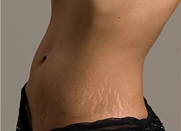 Celebrity's stretch marks problems