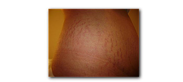 Best way to get rid of red stretch mark
