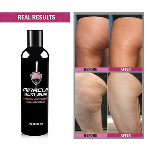 Miracle Bum Bum Powerful Body Firming Hot Cellulite Cream – Hot Cream for Skin Tightening Toning and Slimming for Butt Thighs Tummy Arms – Fat Burner Anti-Cellulite Cream for Women