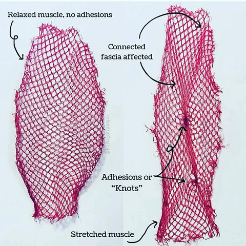 Netting used as an example of adhesions and fascia.