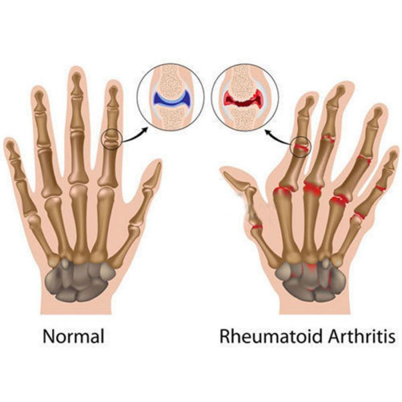 Arthritis Copper Therapy Gloves