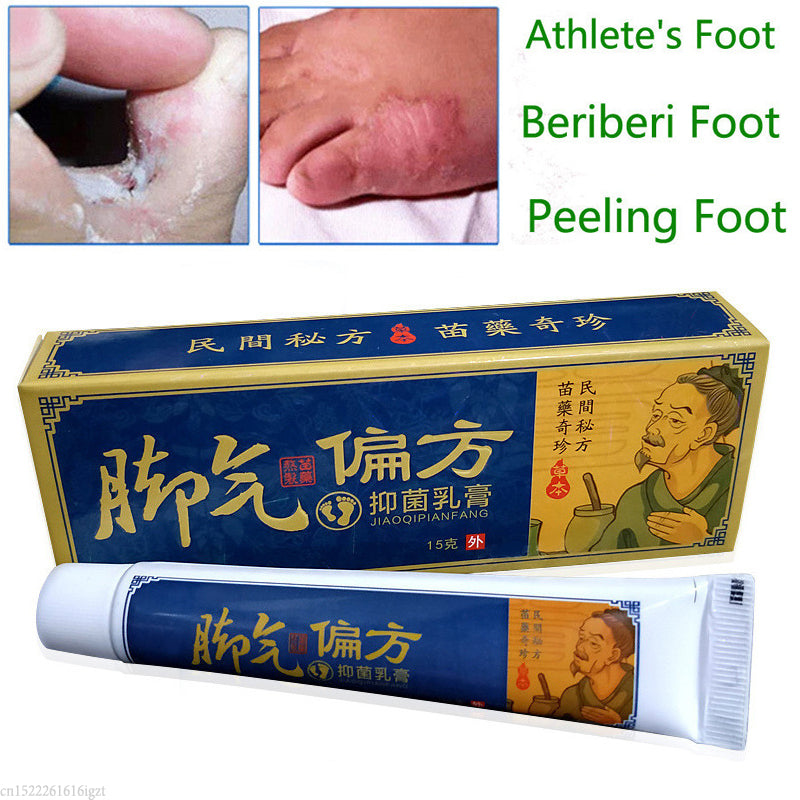 Foot Psoriasis and Eczema Herbal Cream