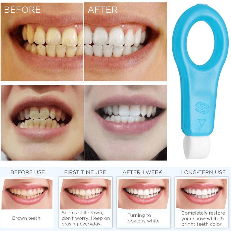 Pro Nano Teeth Whitening Kit