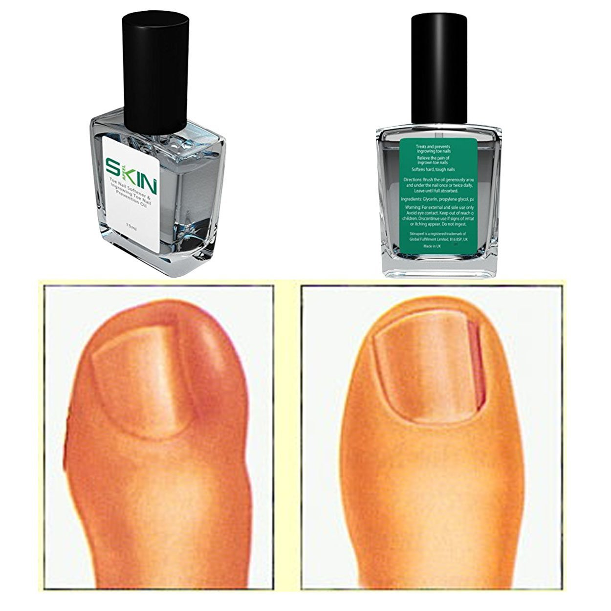 Skinapeel Toe Nail Softener and Ingrowing Toenail Prevention Oil by  Beauty Pop Cosmetics