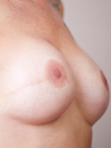 Ready-made Prosthetic Nipples – Natural Style (pair)