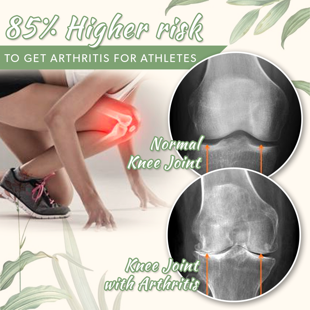 Studies show that athletes have 85% higher risk in diagnosing arthritis