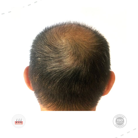 Treatment For Hairfall (Male)