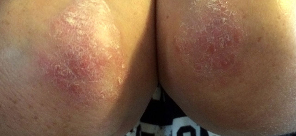 Psoriasis? How am I going to deal with this?
