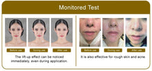 Load image into Gallery viewer, Coristop Acupunture Patch for Face Lifting Anti-Aging & Stiffness Relief (15 days) 针灸贴 (15天) - TEL