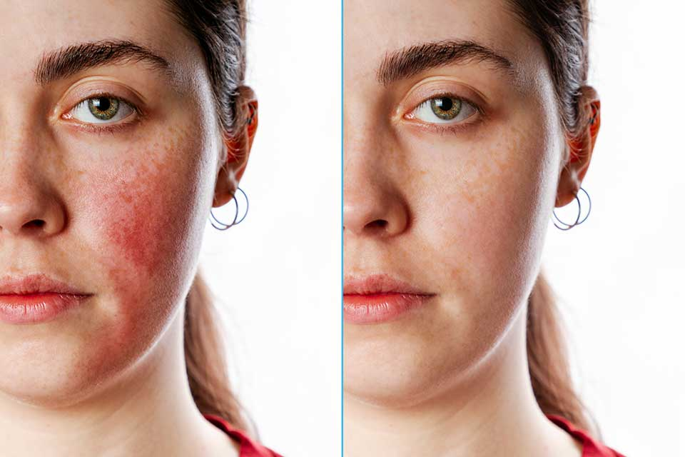 Flushing and facial redness