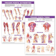 Chart: Trigger Point Charts I & II (Set of two)